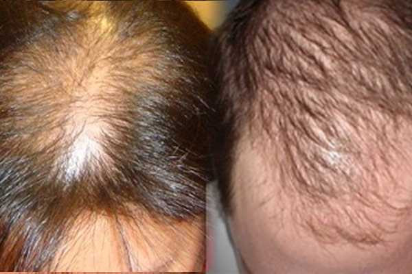 Male And Female Pattern Baldness Treatment In Delhi India Stunning Male Or Female Pattern Baldness Treatments