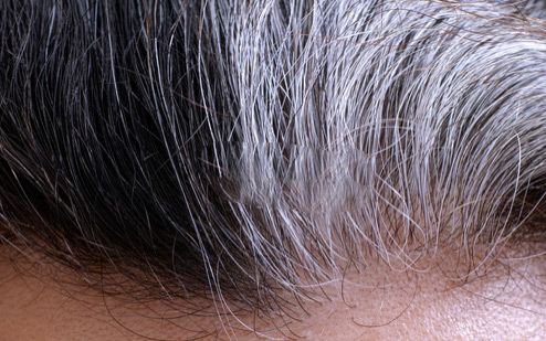 Image result for white hair problem