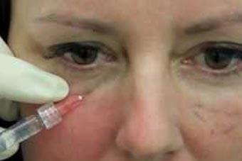 Best Dark circles under eye treatment in delhi,India