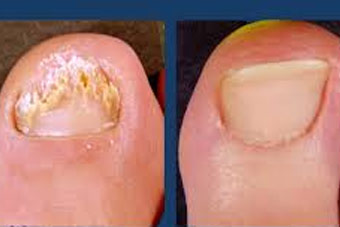 Nail Treatment in delhi, Nail fungal infection in India
